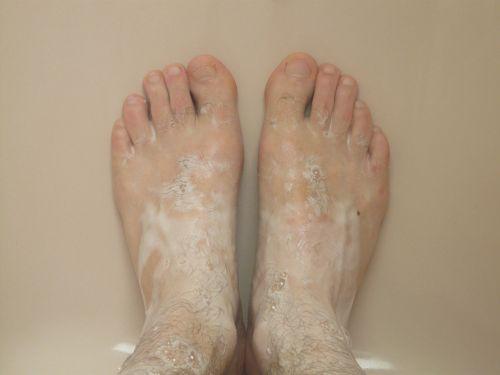 茶树精油如何使用_如何使用茶树精油治疗脚指甲真菌感染 _精油指南, 精油用途 _39 ...